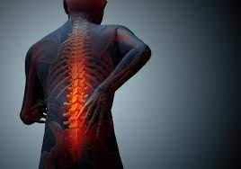 4 Best Ways to Treat Sciatica Pain - Chronic Pain Care